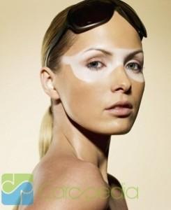 Obat Vitiligo Terbaru